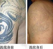 激光洗纹身能洗干净吗?图片