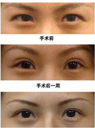 双眼皮手术恢复图片