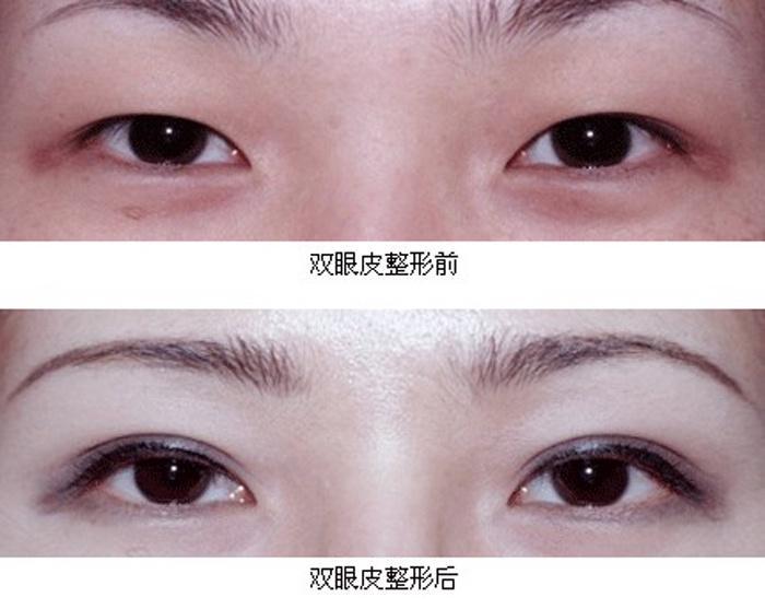 什么是韩式微创无痕双眼皮