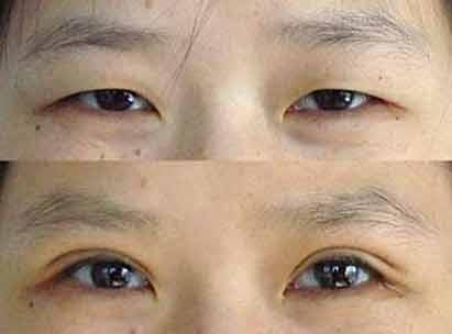韩式微创三点双眼皮效果如何