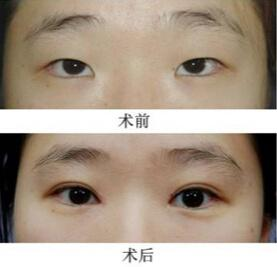 埋线双眼皮恢复过程图