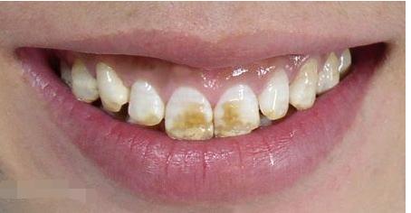 氟斑牙图片及治疗