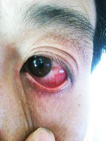 眼球血丝_眼睛里有血丝怎么回事
