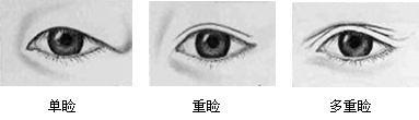 眼的分型(按上睑皱襞)