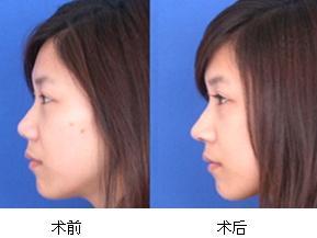 隆鼻术效果图1
