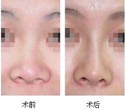 隆鼻术效果图3