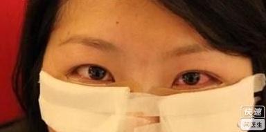 做了祛眼袋手术脸肿了怎么办