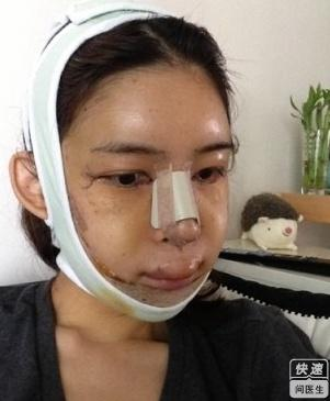 鹰钩鼻手术