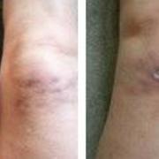 我好后悔做了美塑疗法哦~我腿上有疤呀~呜呜呜~