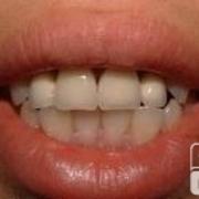 去种植牙了!