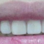 终于做了烤瓷牙啦,牙齿整齐多了~~