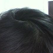 做了针灸治疗脱发~~