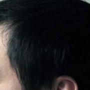 中药防治脱发, 又便宜又好~·