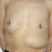 为了婚姻,做了奥美定隆胸,没想到失败了,现在变成三个乳房了!!!