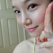 驼峰鼻整形+双眼皮修复,脸蛋变得更加漂亮了!