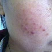 做了射频祛痘有一年了,完全没有复发,分享一下!