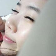 网友建议我去做玻尿酸营造卧蚕眼
