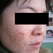 多年来的痘疤终于没有了,全靠我去做了微晶磨削!