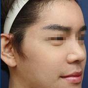 整张脸大改造,丰唇、隆鼻、纹眉等等,快来看看!