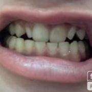 烤瓷牙后牙齿有点整齐了哈~