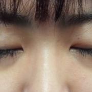 才做了两次激光治疗,脸上的痘疤就少了许多了!