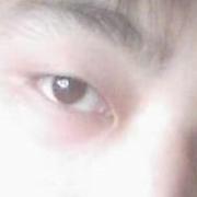 做这个肿眼泡手术之后,我悲剧了