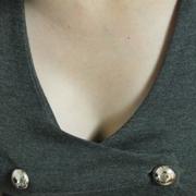 矫正乳房下垂了!