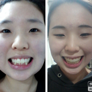 矫正牙齿两年了,终于将牙齿不齐矫正过来了!