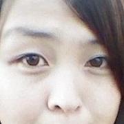 我的眼脸下垂的情况改善很多了