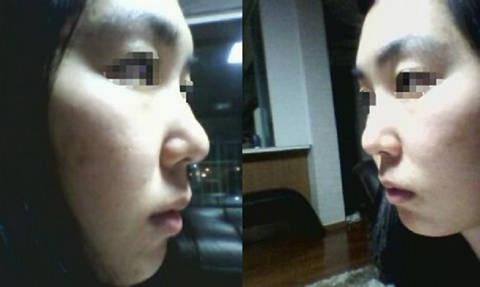 鼻部整形手术前