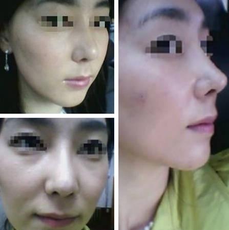 鼻部整形手术后效果