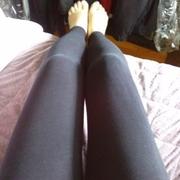 瘦大腿了两个月了,大腿的瘀伤还在~恢复中!