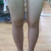 整条腿都做了吸脂手术了,腿终于瘦下来了!