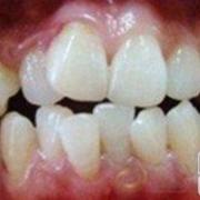 看看我矫正后的牙齿~~