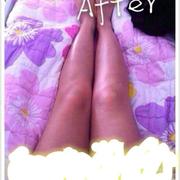 我吸脂瘦小腿的经历