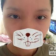 我的完美双眼皮