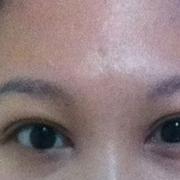 双眼皮+开眼角