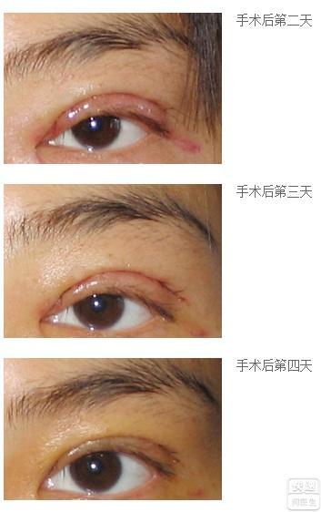 眼睛男生也做了切开式双眼皮.