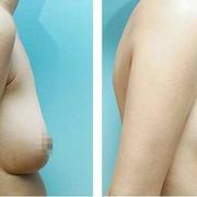胸部下垂让我很忧虑,所以决心做了个矫正胸部的手术