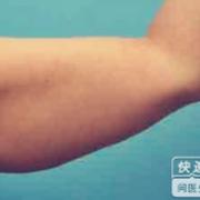 瘦手臂是为了能美美的穿婚纱