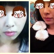 到韩国做了个磨骨瘦脸术