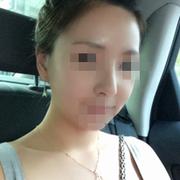 磨颧骨+隆鼻术后分享