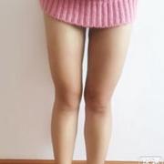 女汉纸大腿吸脂后的一些恢复经历