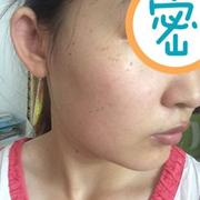 一次激光不够再来一次,脸上的斑还在恢复中,期待恢复好后的效果
