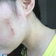 修复脸上疤痕的漫漫之旅