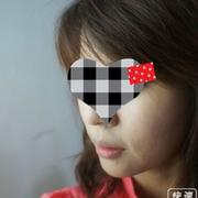 微晶瓷注射到下巴之后,我的下巴稍微改变了
