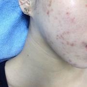治疗三次,微针,感觉脸上有比之前好一些