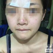 不听医生劝,非要点痣,脸上留疤又复发,又增生的,很后悔!