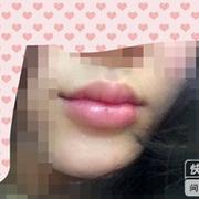 刚玻尿酸丰完嘴唇和鼻沟,感觉有点难受