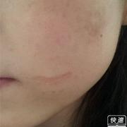 才开始用激光祛脸上的陈年旧疤
